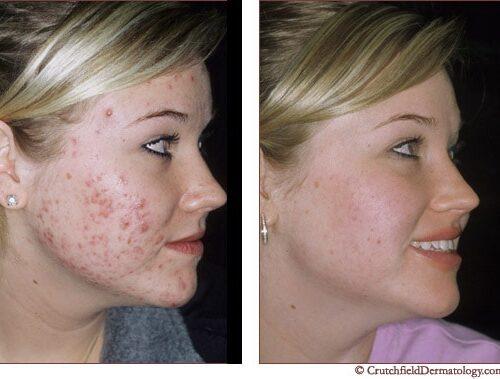 acne-0001