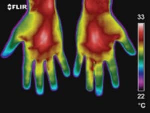 Thermography Hand Screening