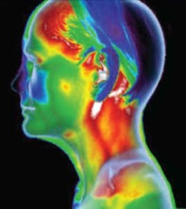 Thermography Chevy Chase, MD